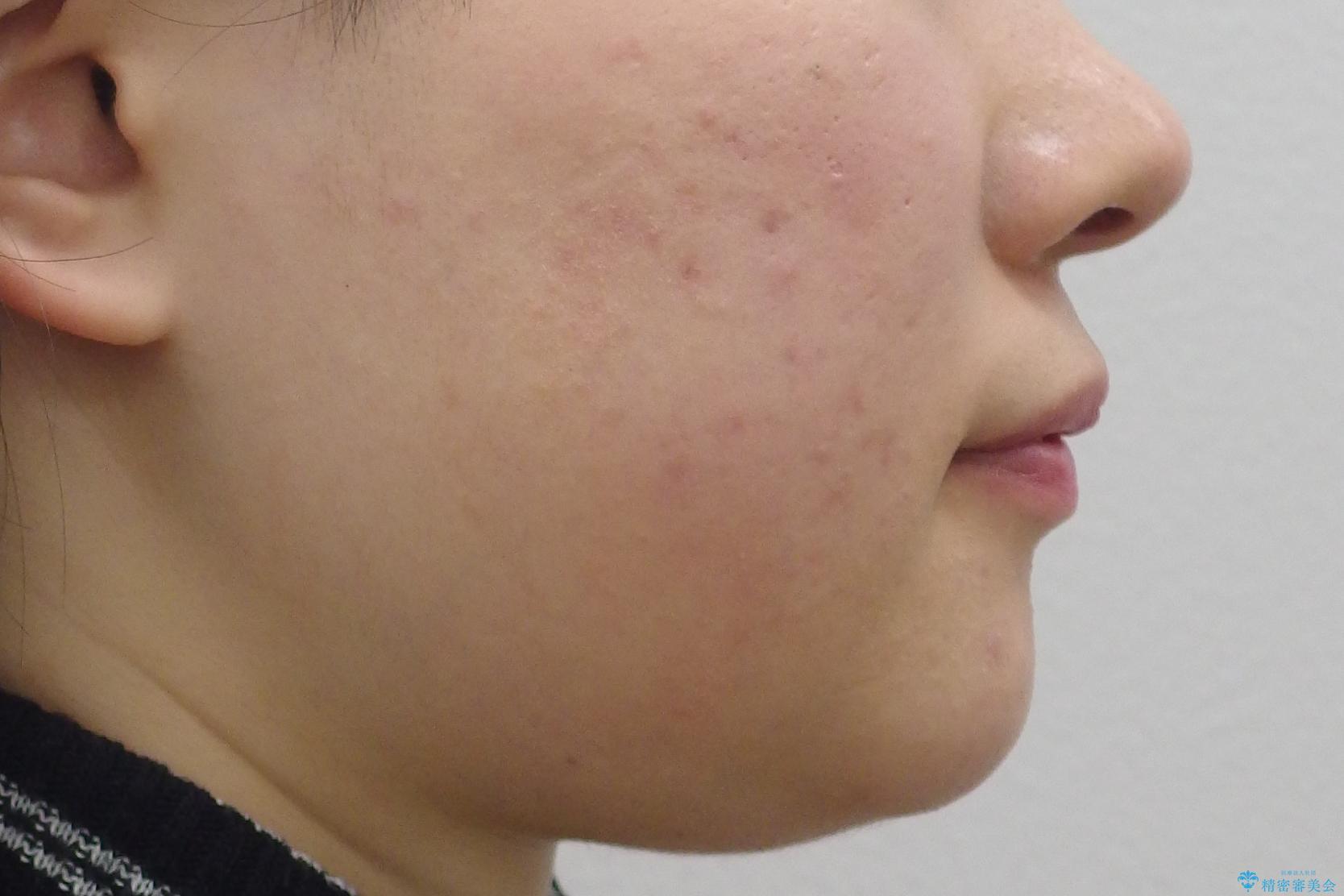 抜かない矯正 前歯がとび出ているのをマウスピースでの治療前(顔貌)