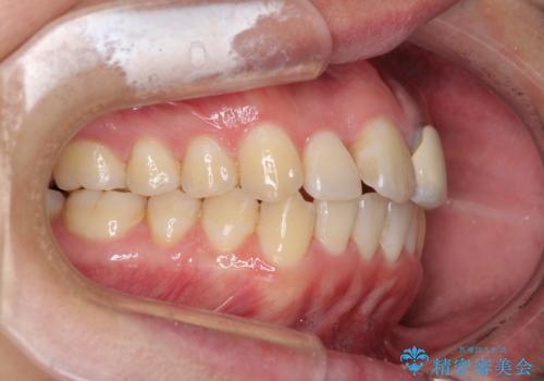 前歯の歯並びとクラウンを改善 インビザラインとオールセラミックの治療中