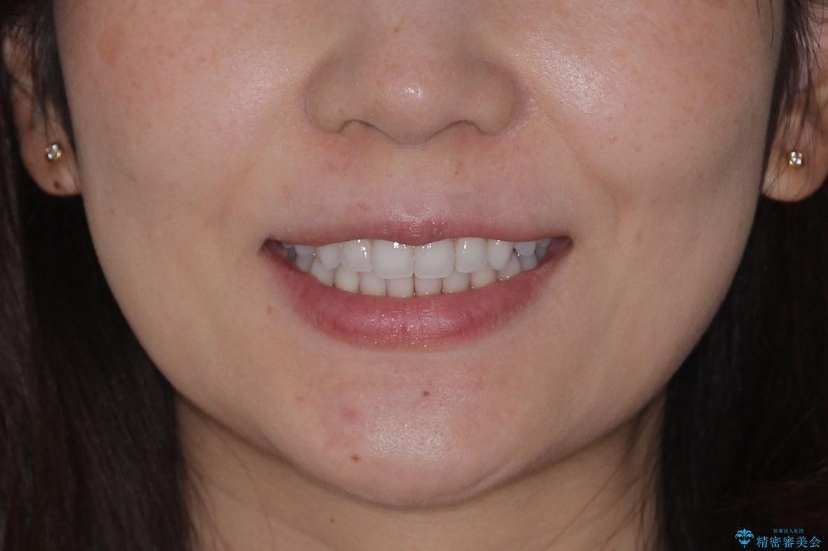 八重歯をマウスピース矯正で治療し、レーザーホワイトニングを行った症例の治療後(顔貌)