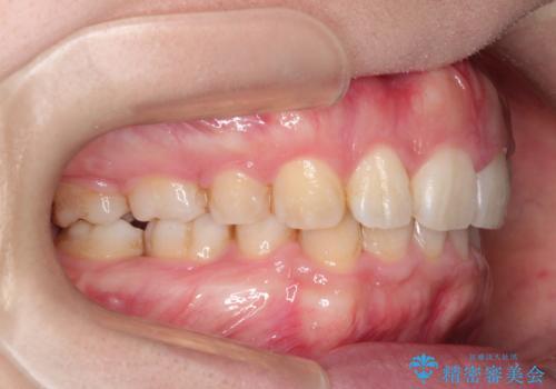 前歯がでていて口が閉じずらい ワイヤーによる抜歯矯正の症例 治療後