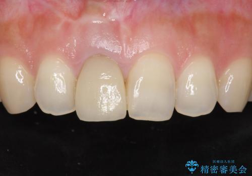 差し歯をもっと自然に 30代女性の症例 治療前