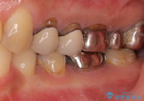 歯肉の縁に金属が見えて気になる オールセラミッククラウンによる審美歯科治療の治療前