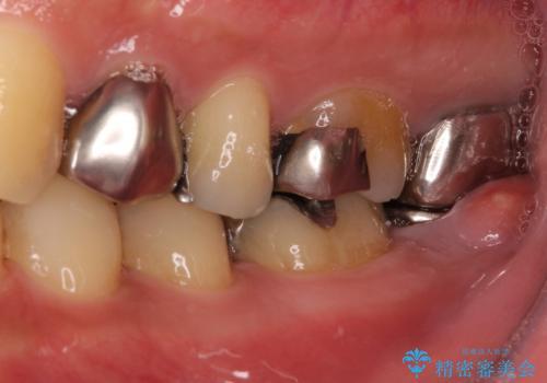 割れてしまった奥歯 インプラントによる咬合回復の治療前