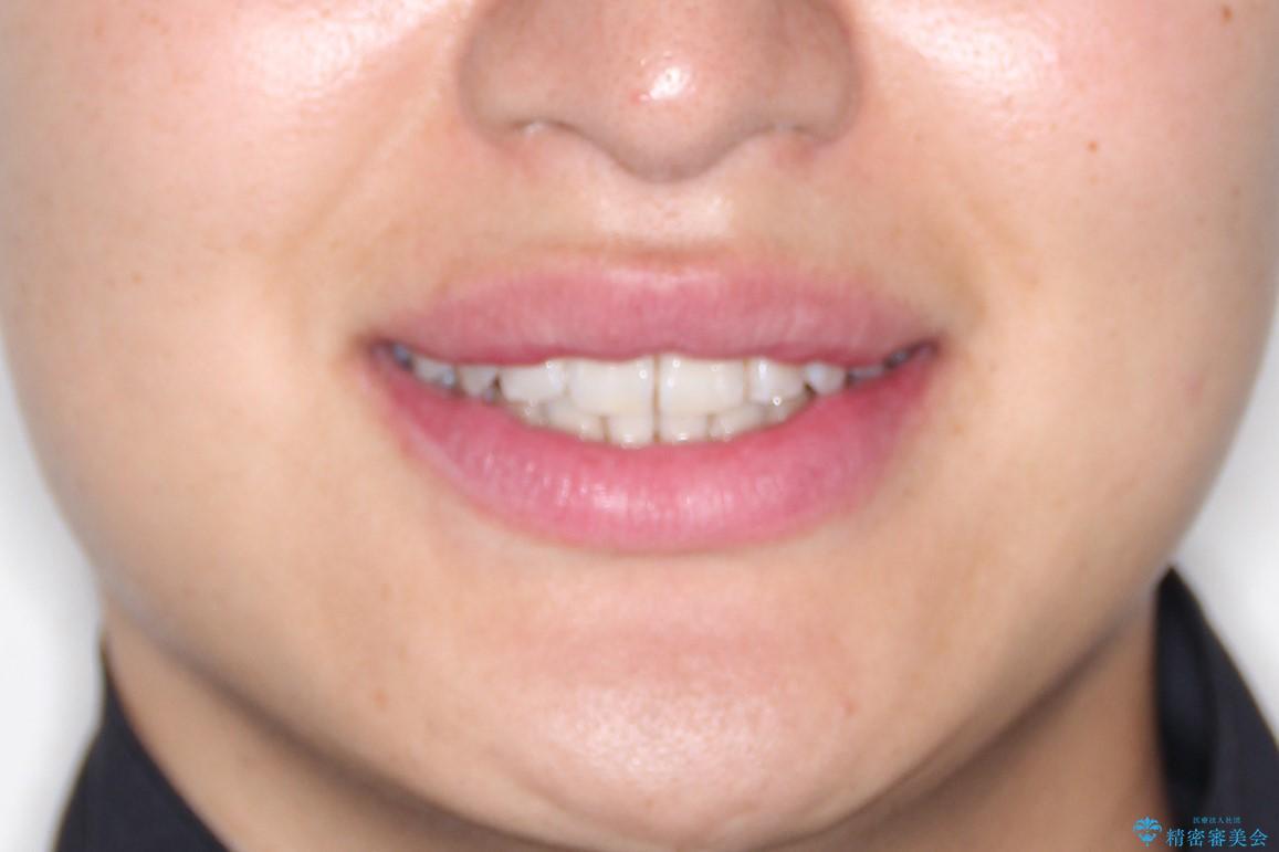 前歯の凸凹をきれいにしたい。インビザラインによる治療の治療後(顔貌)