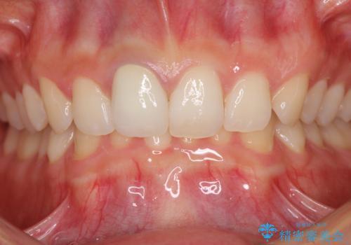 ぶつけて変色した前歯 オーダーメイドタイプのオールセラミッククラウンの治療後