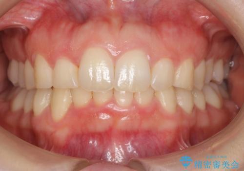 抜かない矯正 前歯がとび出ているのをマウスピースでの症例 治療後