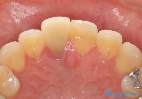 差し歯をもっと自然に 30代女性の治療前