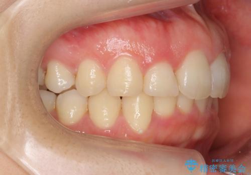抜かない矯正 前歯がとび出ているのをマウスピースでの治療後