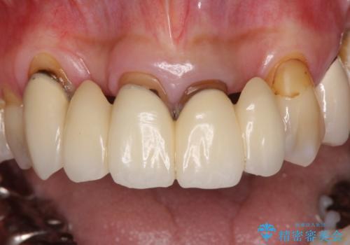 空気が抜けて話しにくい前歯のブリッジ オールセラミックブリッジにて審美的に仕上げるの治療前