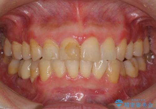 昔ぶつけた前歯 つめもの変色の治療前