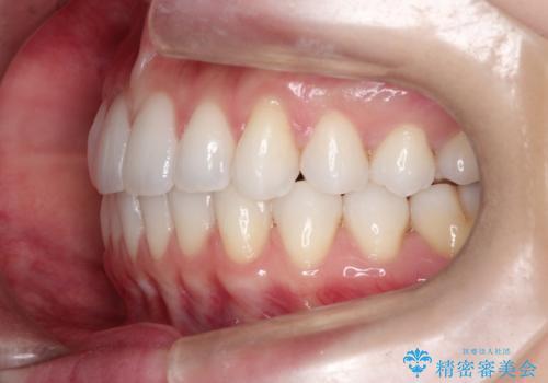 八重歯をマウスピース矯正で治療し、レーザーホワイトニングを行った症例の治療後