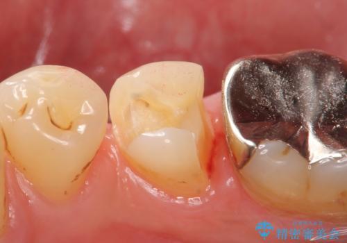 PGA(ゴールド)インレー しみる歯の治療の治療中