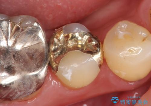 PGA(ゴールド)インレー しみる歯の治療の治療後