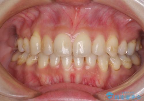 軽度な歯列不正 インビザライン・ライトによる矯正治療の治療中