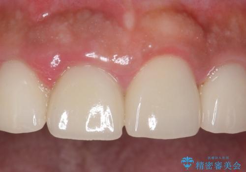 オールセラミッククラウン 土台ごと外れた前歯の補綴の症例 治療前