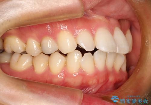 フルリンガル矯正 非抜歯でガタつきを整えるの治療中