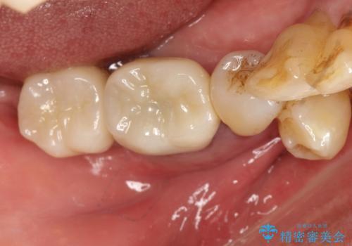 歯周病にて保存不可能な歯をショートインプラントで回復するの治療後