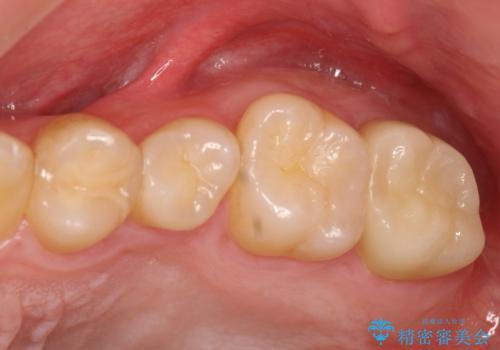 奥歯が痛い! 中途半端な治療をしっかりとやり治すの症例 治療後