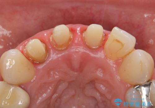 オールセラミッククラウン(スペシャル) 不揃いな前歯を美しくの治療中