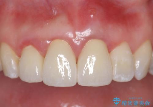 オールセラミッククラウン(スペシャル) 不揃いな前歯を美しくの症例 治療後