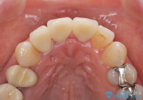 オールセラミッククラウン(スペシャル) 不揃いな前歯を美しくの治療後