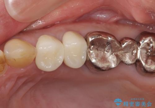 歯肉の縁に金属が見えて気になる オールセラミッククラウンによる審美歯科治療の治療後