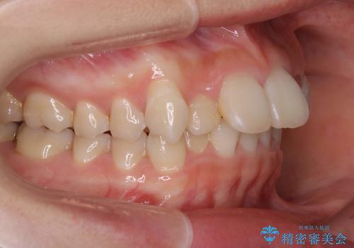 ハーフリンガル矯正 抜歯をして前歯を下げるの症例 治療前