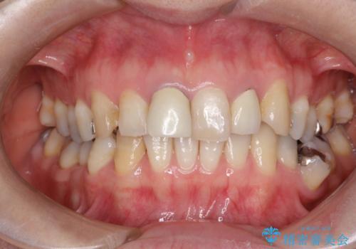 不自然な保険のかぶせ物をセラミックで自然な前歯への治療前