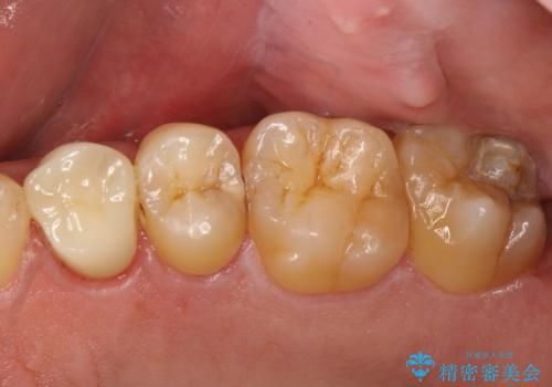 大きな虫歯で崩壊した歯の修復の症例 治療後
