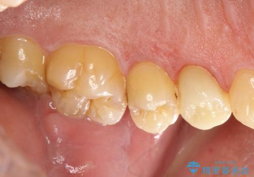 大きな虫歯で崩壊した歯の修復の治療後