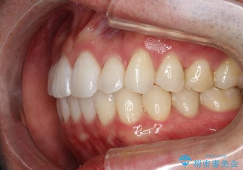 フルリンガル矯正 非抜歯でガタつきを整えるの治療後