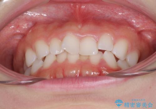 デコボコと深い咬み合わせの改善 インビザラインによる矯正治療の治療前