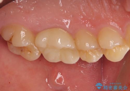 根管治療中の転院 奥歯のオールセラミック治療の治療後