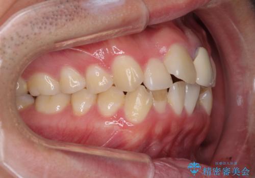 前歯の歯並びとクラウンを改善 インビザラインとオールセラミックの治療前