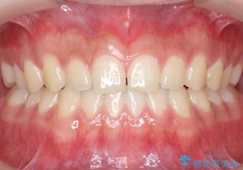 前歯のすきま 受け口 インビザラインでの治療中