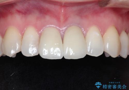 前歯の根元が黒い オールセラミッククラウンの装着による改善の治療後