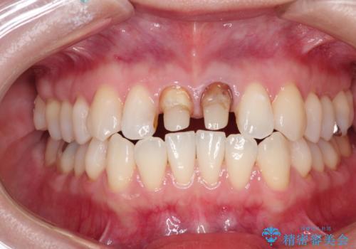 前歯の根元が黒い オールセラミッククラウンの装着による改善の治療中