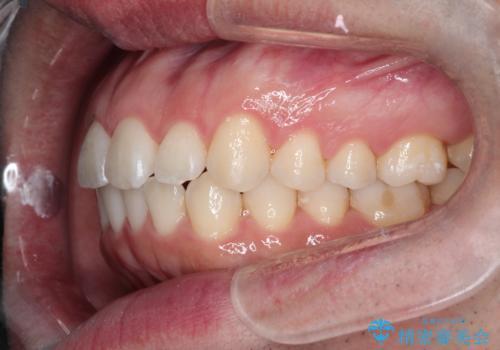 インビザラインで前歯のがたつきを目立たずに矯正治療の治療後