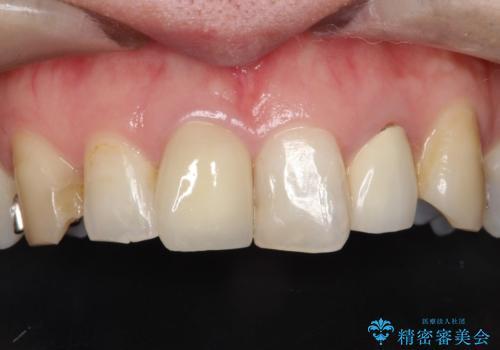 不自然な保険のかぶせ物をセラミックで自然な前歯への治療後