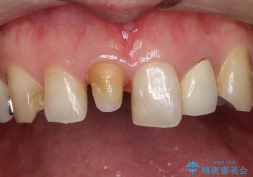 不自然な保険のかぶせ物をセラミックで自然な前歯への治療中