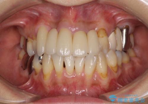 空気が抜けて話しにくい前歯のブリッジ オールセラミックブリッジにて審美的に仕上げるの治療後