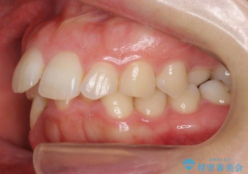 抜かない矯正 前歯がとび出ているのをマウスピースでの治療前