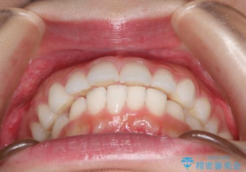 出っ歯の矯正治療 歯を抜かずにインビザラインでの治療前