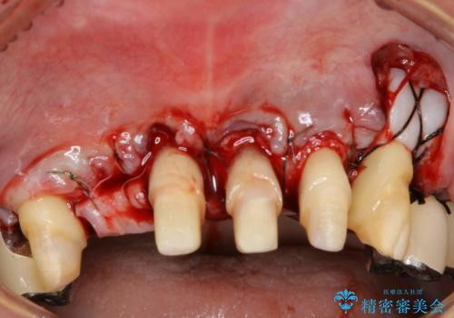 歯周病におかされた前歯の再建治療の治療中