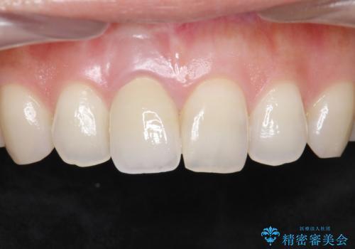 差し歯をもっと自然に 30代女性の症例 治療後