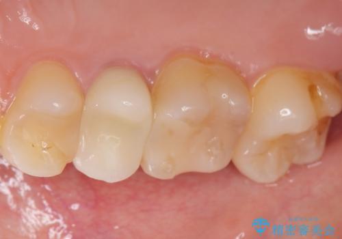 差し歯をもっと自然に 30代女性の治療後