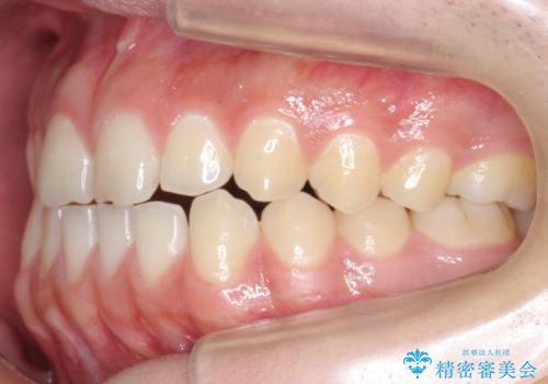 前歯のすきま 受け口 インビザラインでの治療前