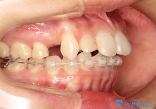 ハーフリンガル矯正 抜歯をして前歯を下げるの治療中