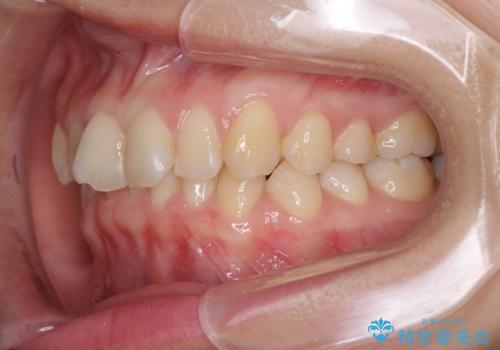 インビザラインによる前歯の矯正治療の治療前