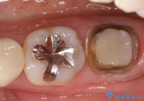 奥歯が痛い。根管治療からセラミッククラウンの治療中